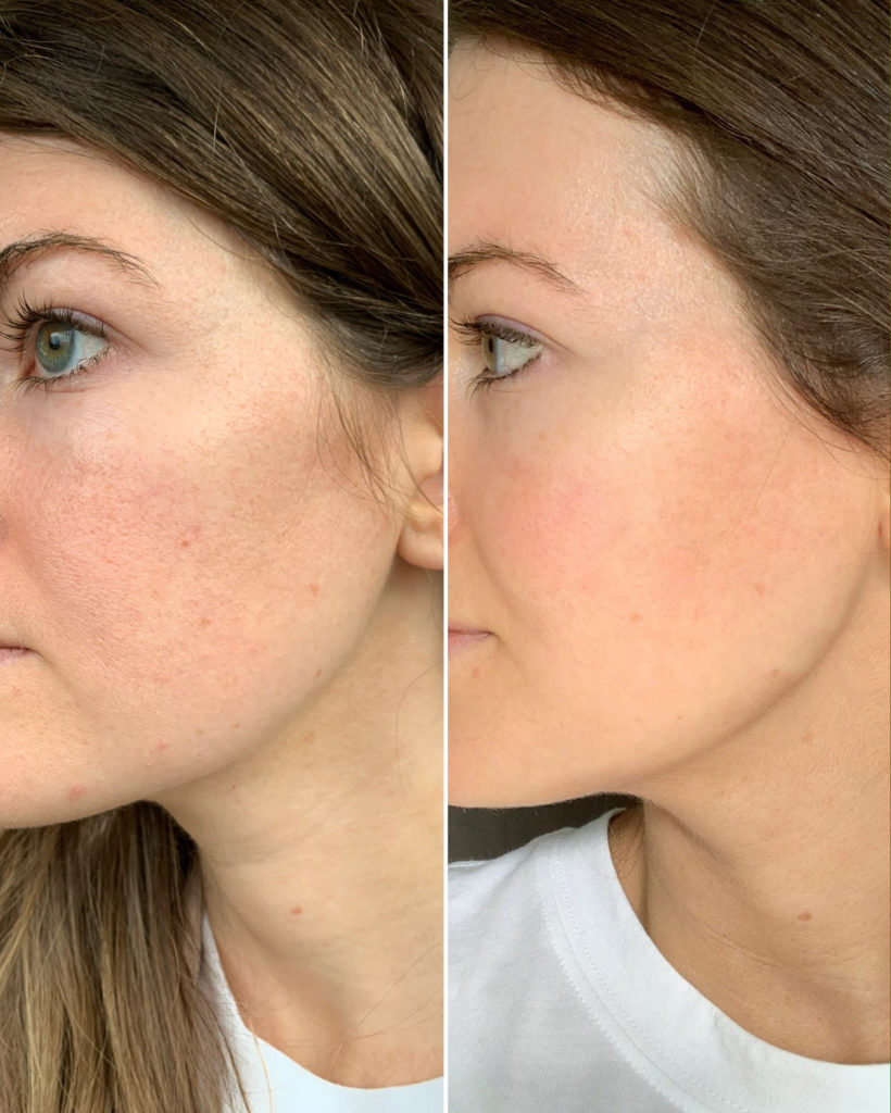My Experience Using Olay Retinol24 Before After Photos